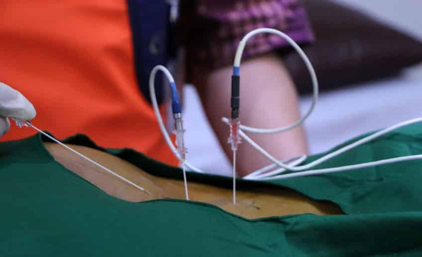 radiofrequency ablation - Klinik Nyeri dan Tulang Belakang